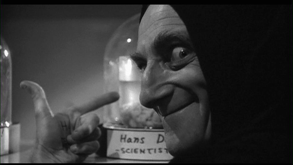 Frankenstein_Junior_03_-_Igor_cervello_Hans_Delbruck